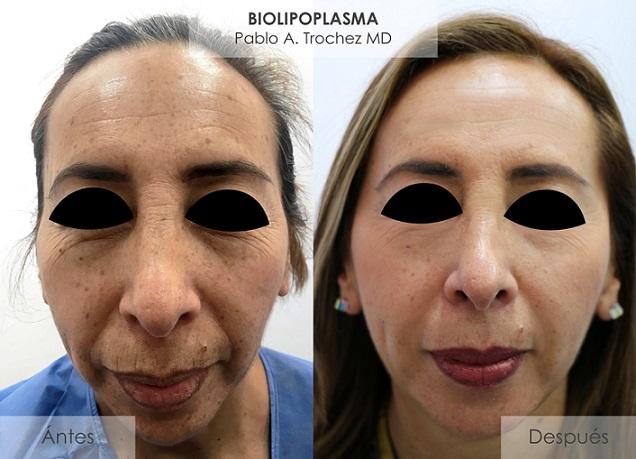 Dermatología DC presenta el Biolipoplasma novedoso tratamiento antiedad y rejuvenecimiento sin cirugías.