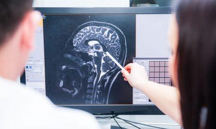 Estudios revelan la presencia del Coronavirus en el cerebro